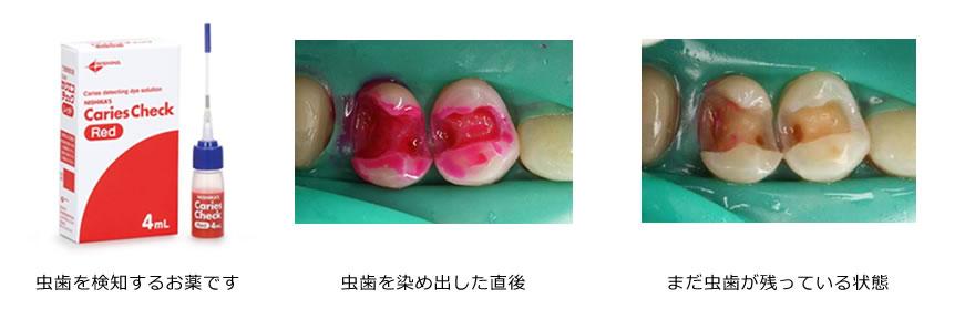 虫歯治療05