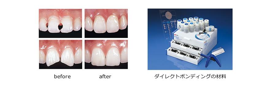 虫歯治療06