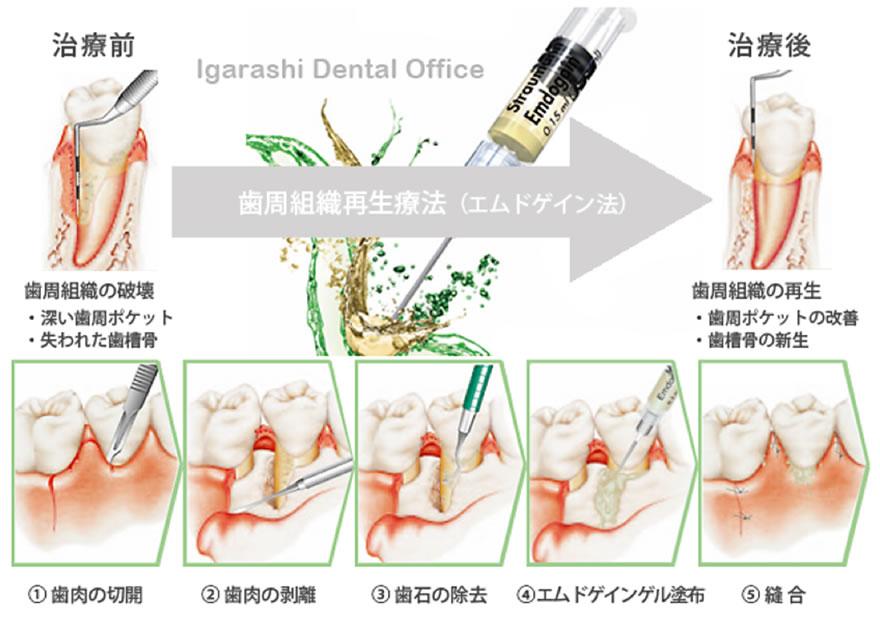 歯周病治療05