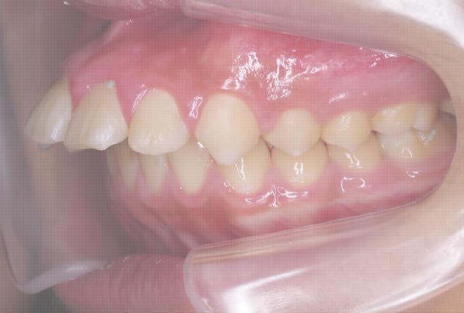 出っ歯矯正治療前