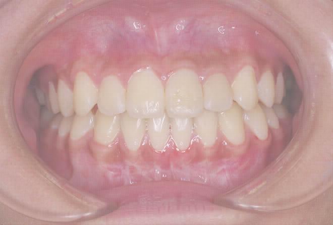 八重歯矯正治療後