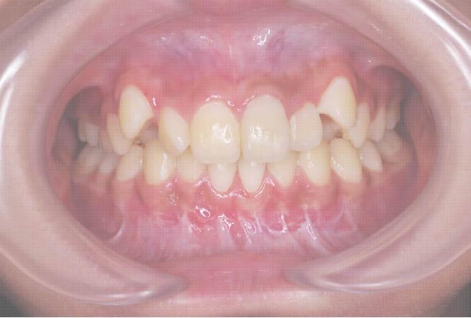 八重歯矯正治療前