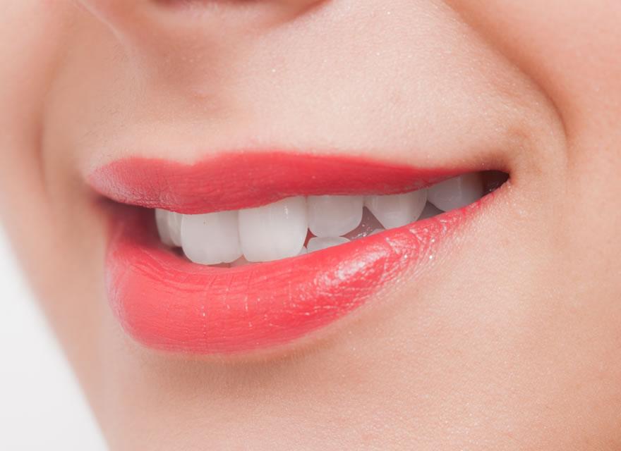 むらつ歯科のホワイトニングについて